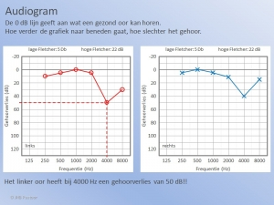 Een Audiogram